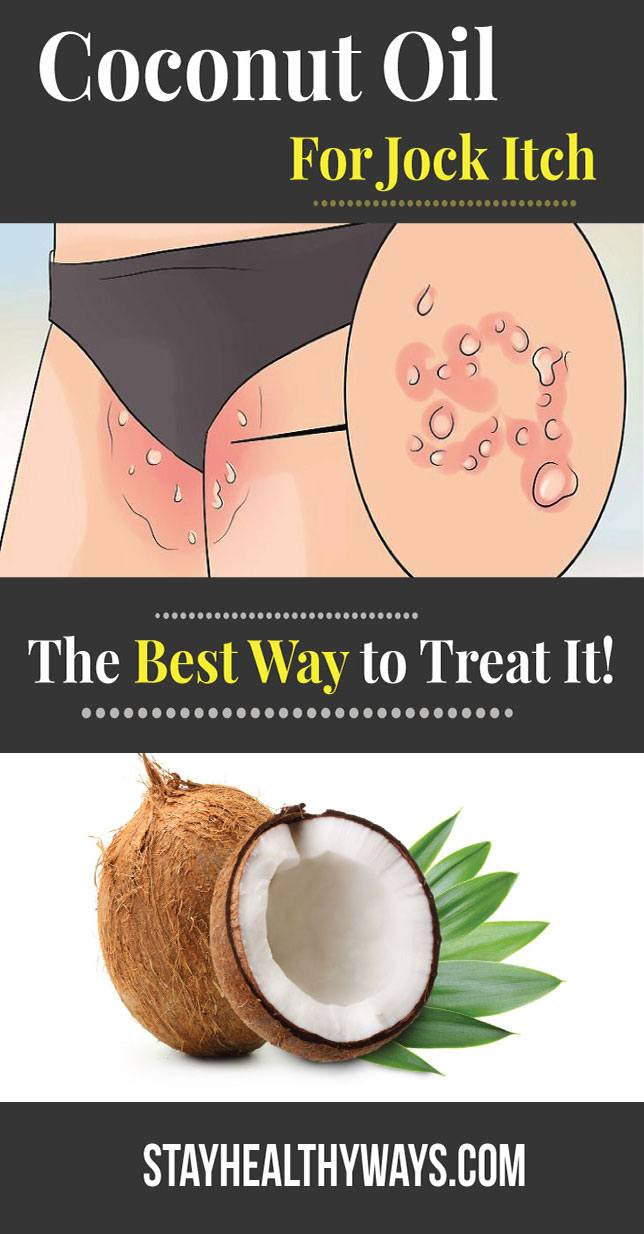 coconut oil for jock itch infographic