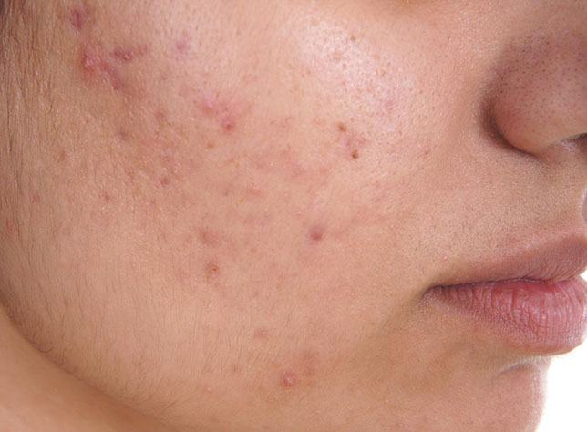 Castor Oil for Acne – All You Need to Know to Solve Your