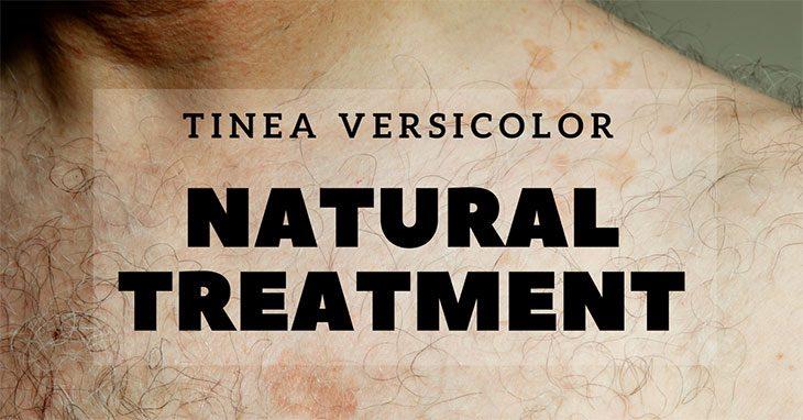 tinea versicolor natural treatment
