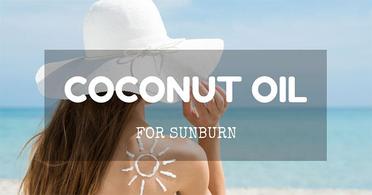 coconut oil for sunburn