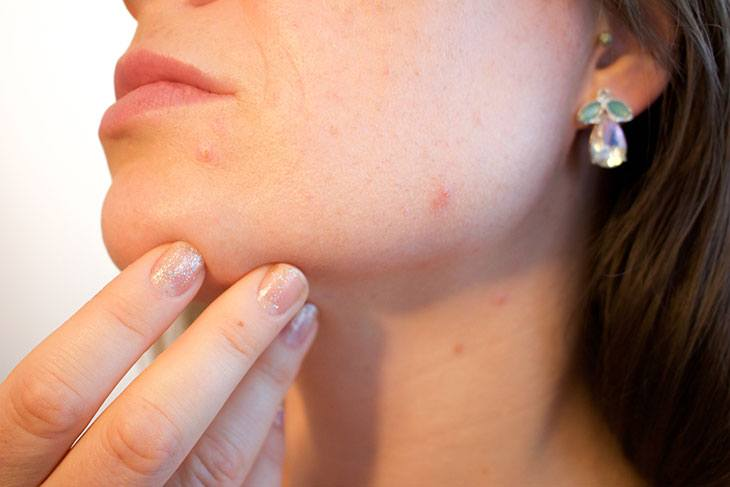 best primer for acne scars