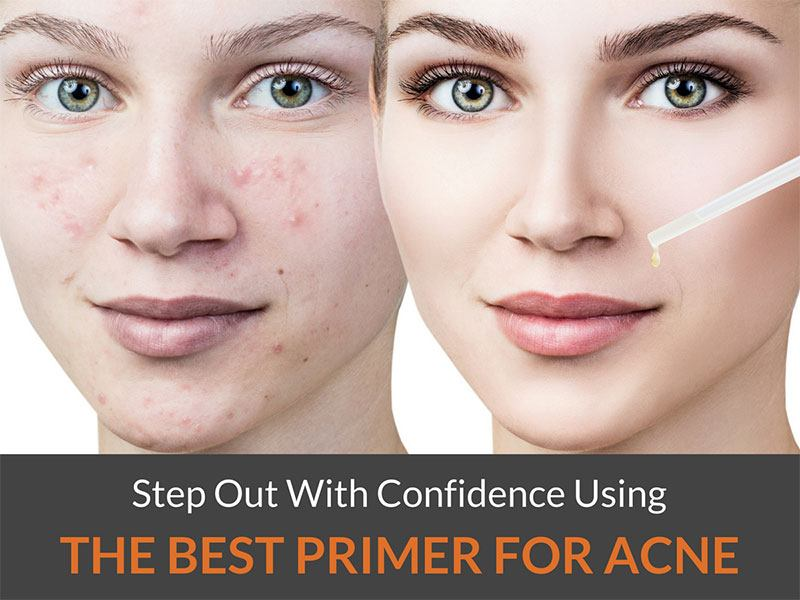 best primer for acne